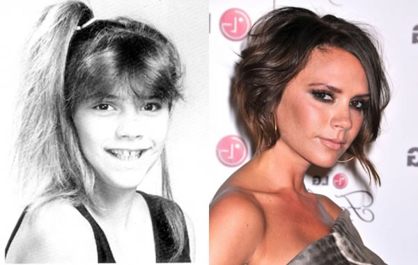 celebrities when they were young and now 15