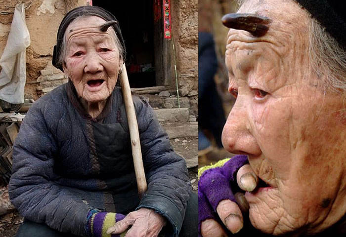 Today s daily wtf 101 year old chinese woman grows horn on head