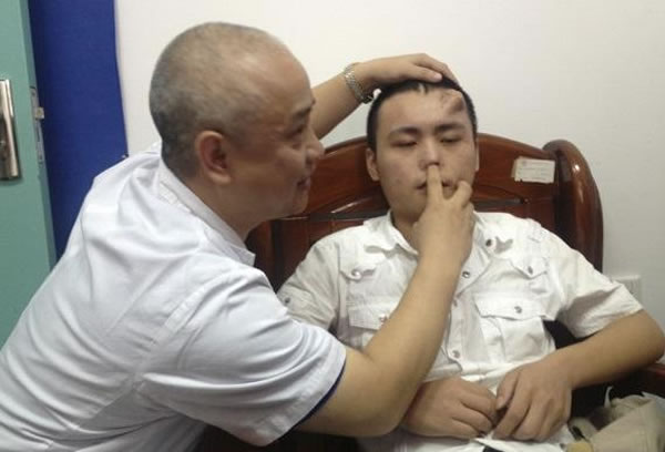 Man Grows Nose On Forehead To Repair Car Crash Damadged Face  1