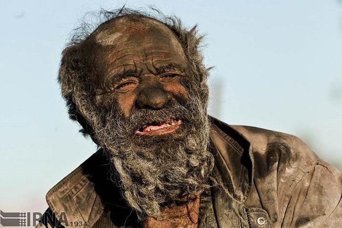 Meet The Dirtiest Old Man Who Hasn't Seen A Bath Tub in 60 Years