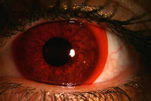 Crazy And Cool Contact Lenses That People Actually Wear 3