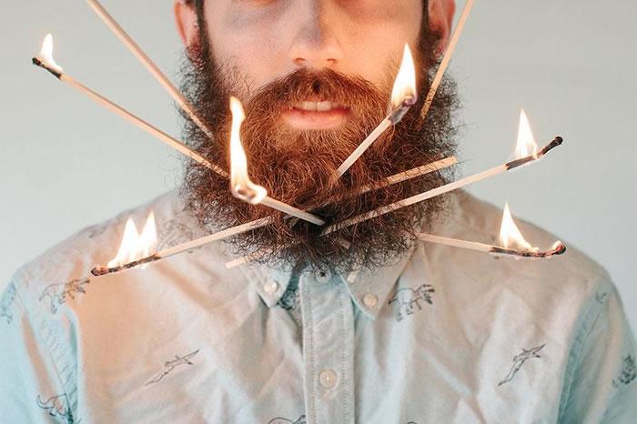 Mr Crazy Beard Implants - WTF (4)